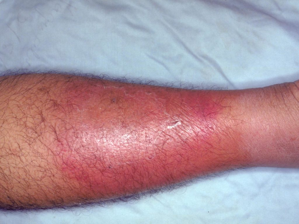 A leg affected by cellulitis